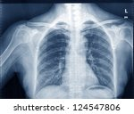 X Ray Image Of Human Chest For...