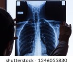 doctor checking on chest x ray. ... | Shutterstock . vector #1246055830