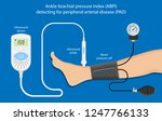 peripheral artery disease ankle ... | Shutterstock .eps vector #1247766133