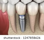 premolar tooth recovery with... | Shutterstock . vector #1247858626