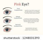 Conjunctivitis, pink eyes. Eye disease. Ophthalmology flat health illustration. Most common conjunctivitis types. Vector.