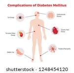 diabetes complications medical... | Shutterstock .eps vector #1248454120