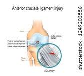 anterior cruciate ligament...   Shutterstock .eps vector #1249203556