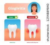 gingivitis vector illustration. ...   Shutterstock .eps vector #1254889840