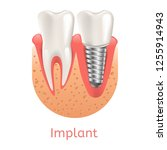 realistic illustration tooth... | Shutterstock .eps vector #1255914943