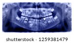 panoramic radiograph is a... | Shutterstock . vector #1259381479
