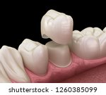 Dental Crown Premolar Tooth...