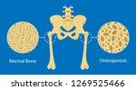 Bone Mineral Density  Bmd ...