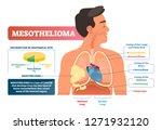 mesothelioma vector... | Shutterstock .eps vector #1271932120