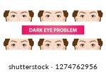type of dark circles under the... | Shutterstock .eps vector #1274762956