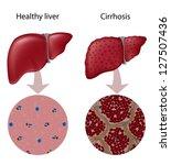 liver cirrhosis | Shutterstock .eps vector #127507436