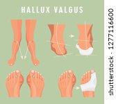 hallux valgus vector medicine... | Shutterstock .eps vector #1277116600
