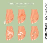 fungus toenail infection vector ... | Shutterstock .eps vector #1277136640
