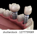 premolar and molar tooth crown... | Shutterstock . vector #1277759089