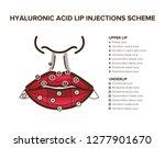 hyaluronic acid filler. lip... | Shutterstock .eps vector #1277901670