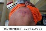 herpes zoster virus  skin... | Shutterstock . vector #1279119376