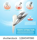 realistic illustration tooth... | Shutterstock .eps vector #1284549580