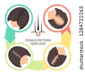female pattern hair loss set.... | Shutterstock .eps vector #1284722263