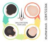 male pattern hair loss set.... | Shutterstock .eps vector #1284722266