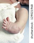 Small photo of Club foot closeup of a newborn, also called talipes equinovarus