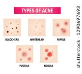 types of acne vector... | Shutterstock .eps vector #1290697693