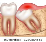 wisdom tooth eruption problems... | Shutterstock .eps vector #1290864553