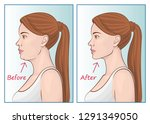 female face before and after... | Shutterstock .eps vector #1291349050