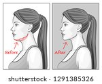 female face before and after... | Shutterstock .eps vector #1291385326