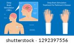 deep brain stimulation dbs... | Shutterstock .eps vector #1292397556