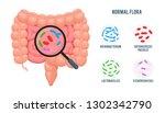 Realistic flat vector illustration:intestine, gut microflora infographic. Cartoon illustration isolated on white. Good flora: Bifidobacterium, Enterococcus Faecalis, Lactobacillus,Escherichia Coli