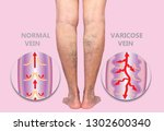 varicose veins on a female... | Shutterstock . vector #1302600340