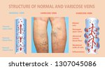 varicose veins on a female... | Shutterstock . vector #1307045086