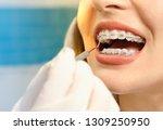 closeup dental braces checkup    Shutterstock . vector #1309250950