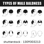 types of male baldness icons ... | Shutterstock . vector #1309303213