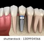 premolar tooth recovery with... | Shutterstock . vector #1309934566