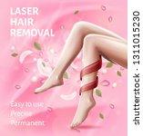 laser hair removal device. easy ... | Shutterstock .eps vector #1311015230