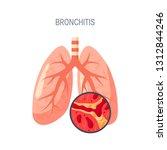 bronchitis disease concept.... | Shutterstock .eps vector #1312844246