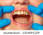 teeth with periodontitis close... | Shutterstock . vector #1314091229