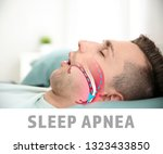 Small photo of Illustration showing airway during obstructive sleep apnea