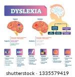 dyslexia vector illustration.... | Shutterstock .eps vector #1335579419