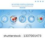 in vitro fertilization process... | Shutterstock .eps vector #1337001473