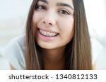 girl in braces | Shutterstock . vector #1340812133