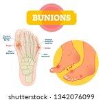 bunions vector illustration.... | Shutterstock .eps vector #1342076099