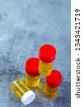 special test tubes of urine for ... | Shutterstock . vector #1343421719