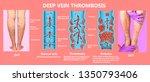 deep vein thrombosis or blood... | Shutterstock . vector #1350793406