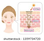 skin mechanism of melanin and... | Shutterstock .eps vector #1359734720
