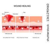 wound healing process.... | Shutterstock . vector #1361290460