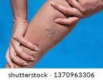 close up of varicose veins on... | Shutterstock . vector #1370963306