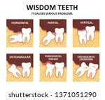wisdom tooth. possible problems ... | Shutterstock .eps vector #1371051290