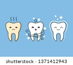 professional cleaning of plaque ... | Shutterstock . vector #1371412943